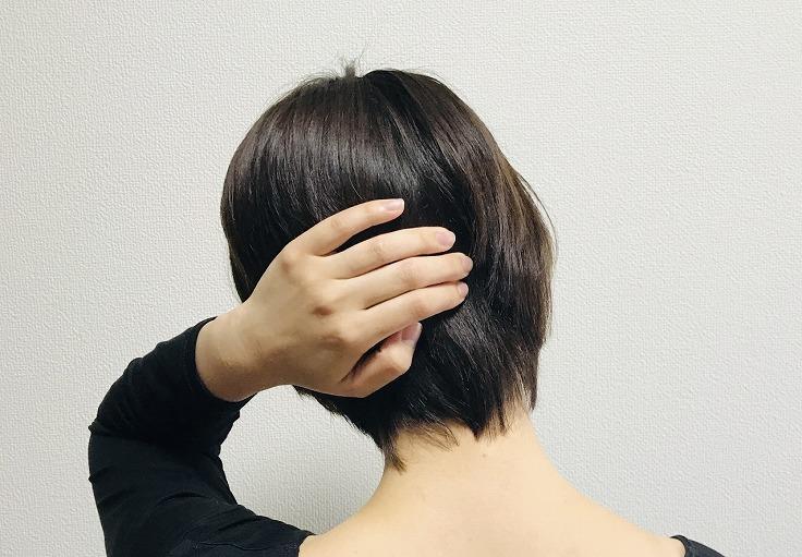 頭痛が起きた時のよくある症状