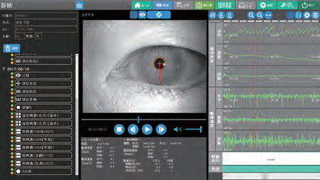 yVOG・診断画面写真